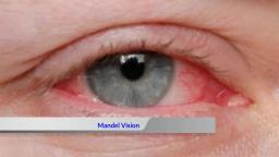New York NY City Lasik - Mandel Vision (888) 866-3681